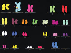 Coloured karyotype (Mr Pagkalos archive)